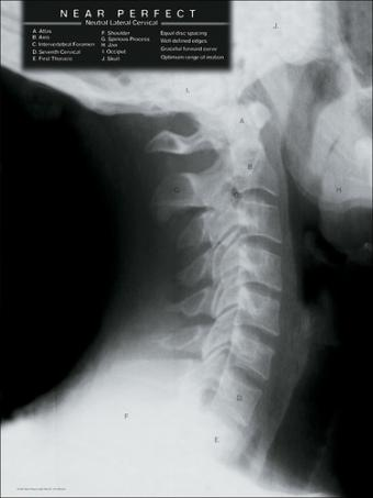cervical x-ray